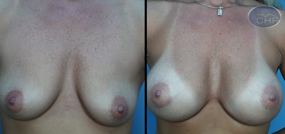 Image: Suture Suspension Breast Lift Before and After photos (group 1) at Centers for Health Promotion in Florida
