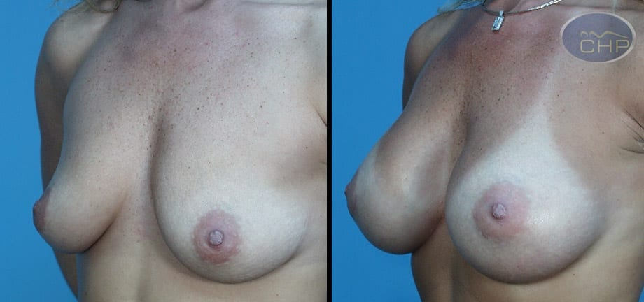Image: Suture Suspension Breast Lift Before and After photos (group 2) at Centers for Health Promotion in Florida