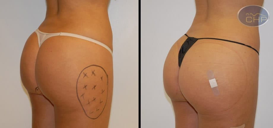Image: Suture Suspension Butt Lift Before and After photos (group 2) at Centers for Health Promotion in Florida