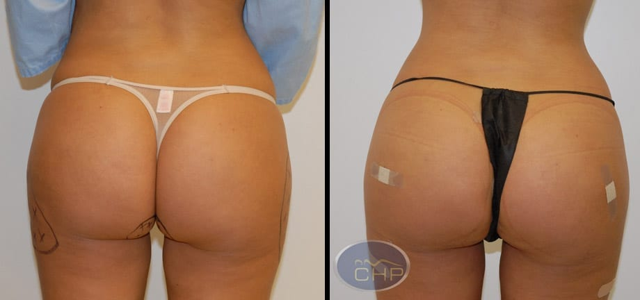 Image: Suture Suspension Butt Lift Before and After photos (group 3) at Centers for Health Promotion in Florida