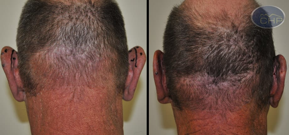 Image: Suture Suspension Ear Lift Before and After photos (group 5) at Centers for Health Promotion in Florida