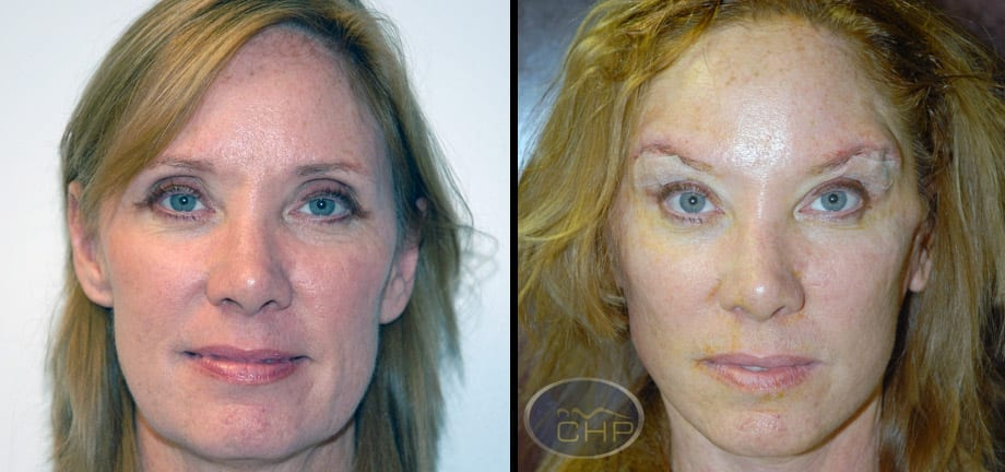 Image: Suture Suspension Eyebrow Lift Before and After photos (group 1) at Centers for Health Promotion in Florida