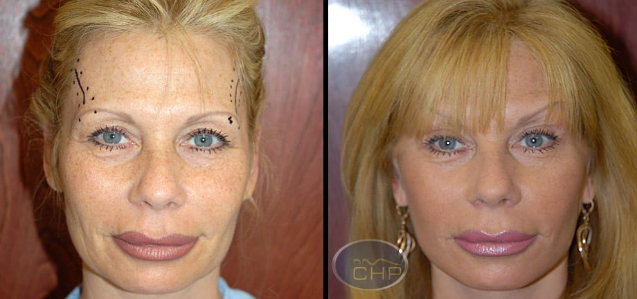Image: Suture Suspension Eyebrow Lift Before and After photos (group 2) at Centers for Health Promotion in Florida